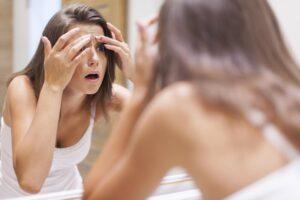 Melasma: o que é, causas, sintomas, e tratamento